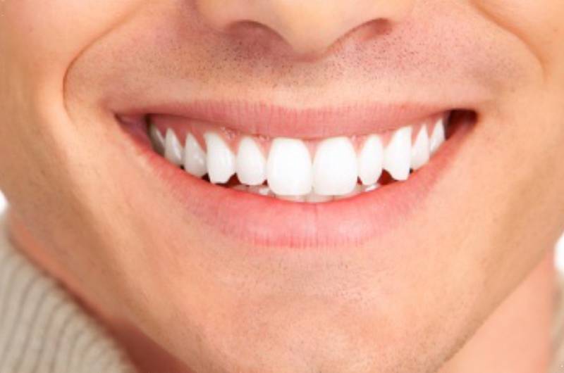 O Melhor Guia Para Clareamento Dental Vive Orale Odontologia